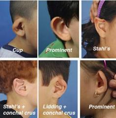 Onbehandelde oorafwijkingen kinderen