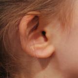 afstaande oren kind