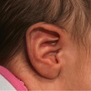 conchal crus oor