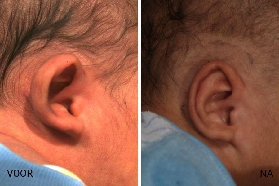 flapoor correctie baby