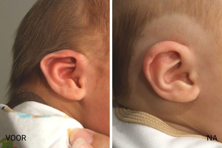 puntige oren baby