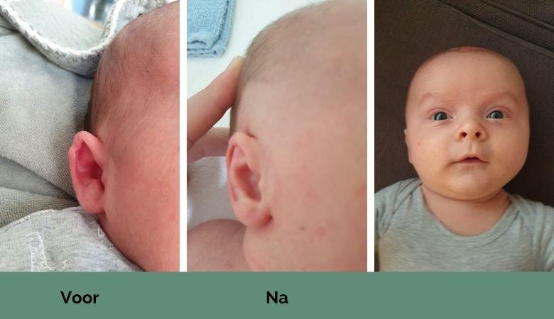 voor en na foto flaporen